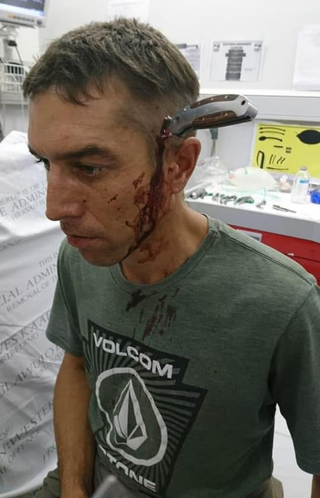 Blood-soaked Shaun Wayne, 34,ad been cycling to work in Strand near Cape Town, South Africa, when he was attacked by two men, one of whom stabbed him in the head