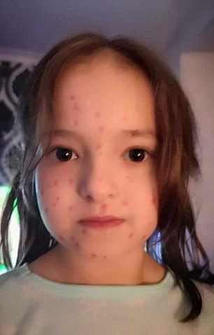 Lily drew red spots all over herself, pictured, but was dismayed when they would not wash off